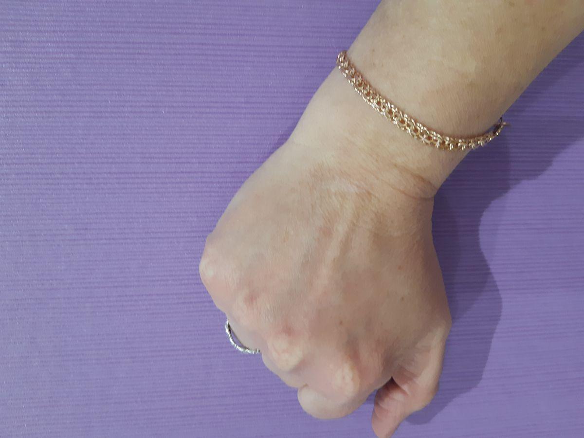 Оптимальный браслет